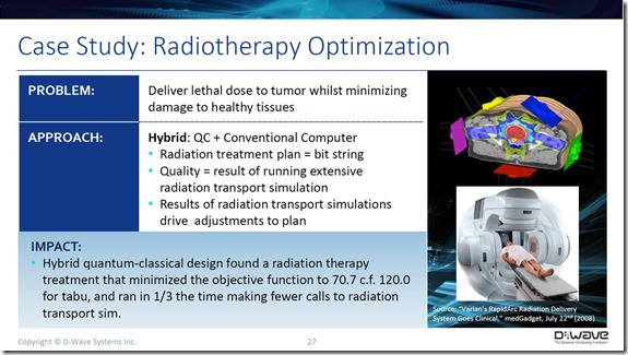 D-Wave and radiotherapy