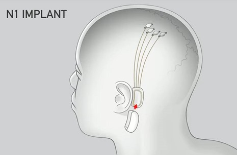 Neuralink Implants