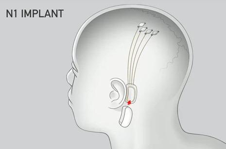 Neuralink Implants
