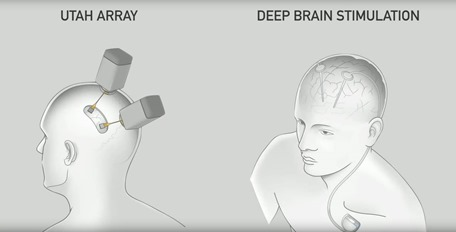 Utah Array et Deep Brain Stimulation