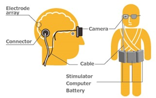 Implant cortex vision artificielle