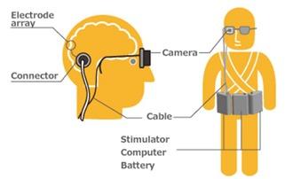 Implant cortex vision artificielle
