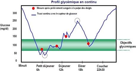 Mesure glycémie